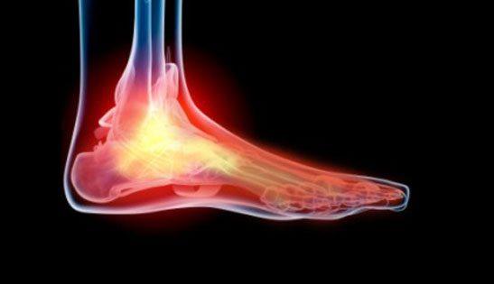 Cancer Induced Neuropathy